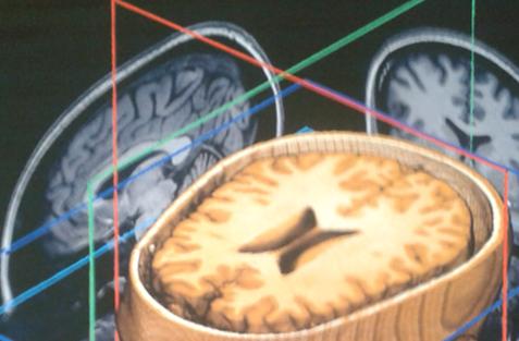 brain scan selfie 2